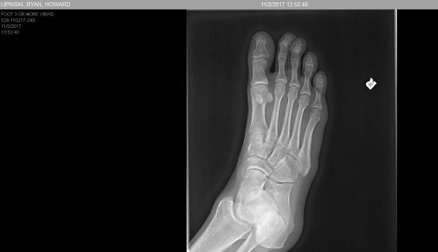 foot 5
