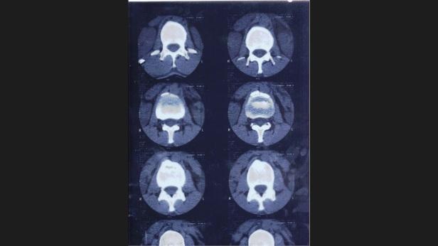 MRI Spine 1