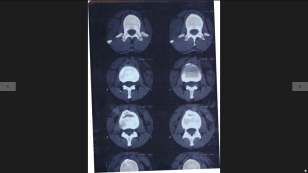 MRI Spine 2