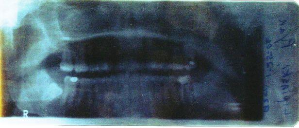 teeth xray 2