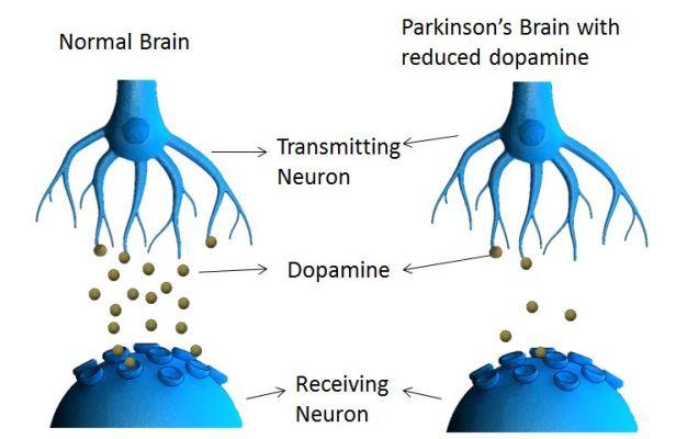 Parkinson-1503438588144